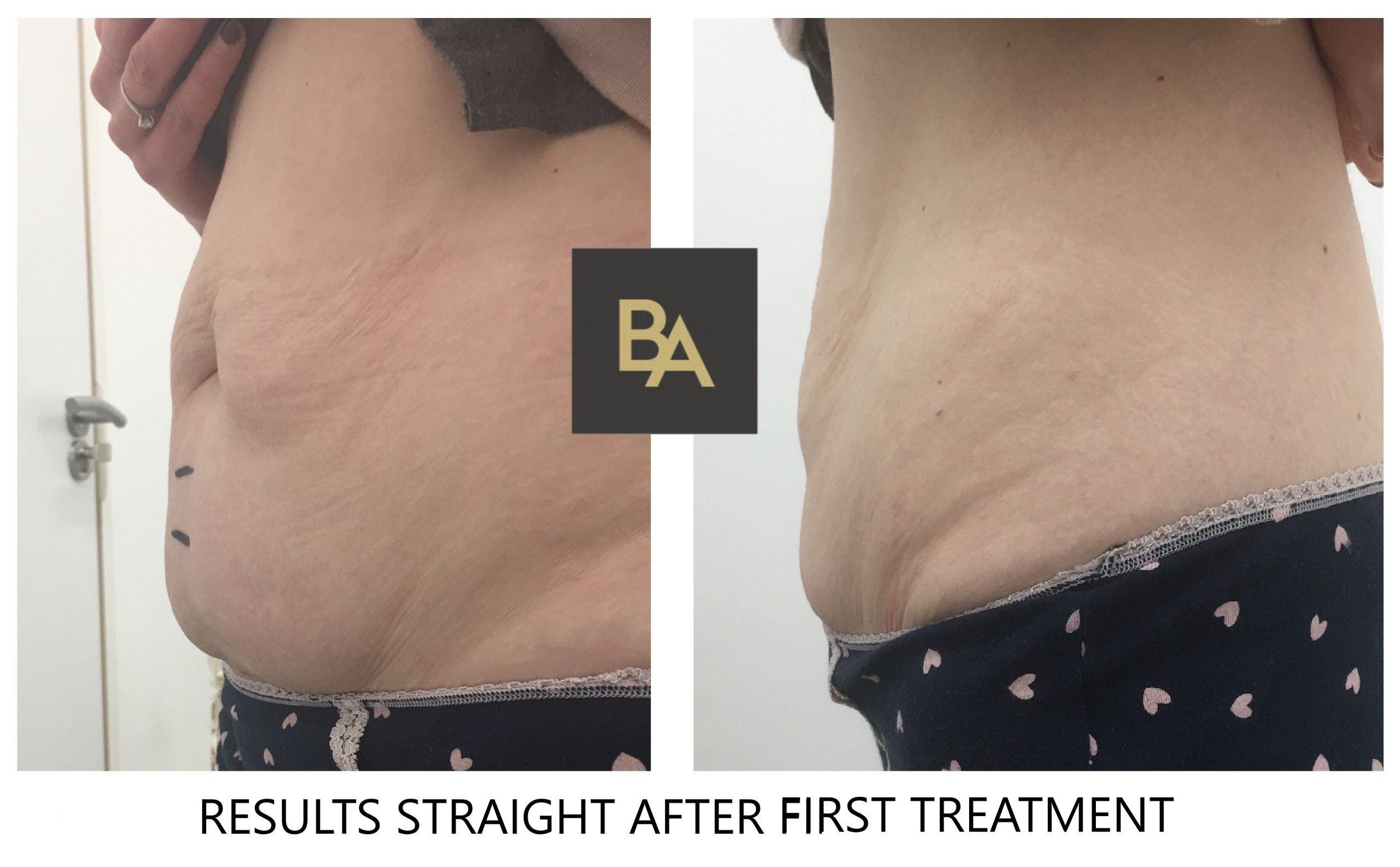 Fat Freezing Cardiff by Beauty Advance Laser Clinic